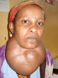 causes and cure of Goiter