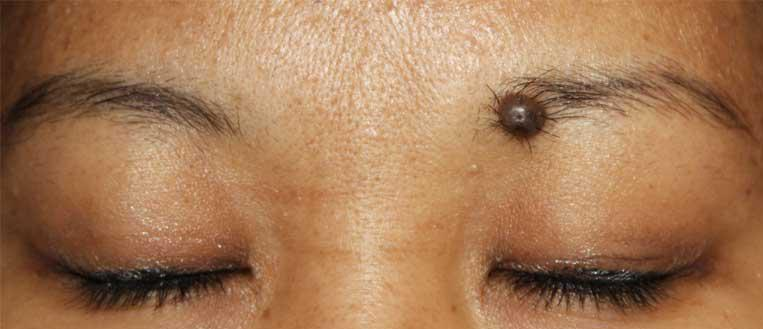 Moles on Eyebrows